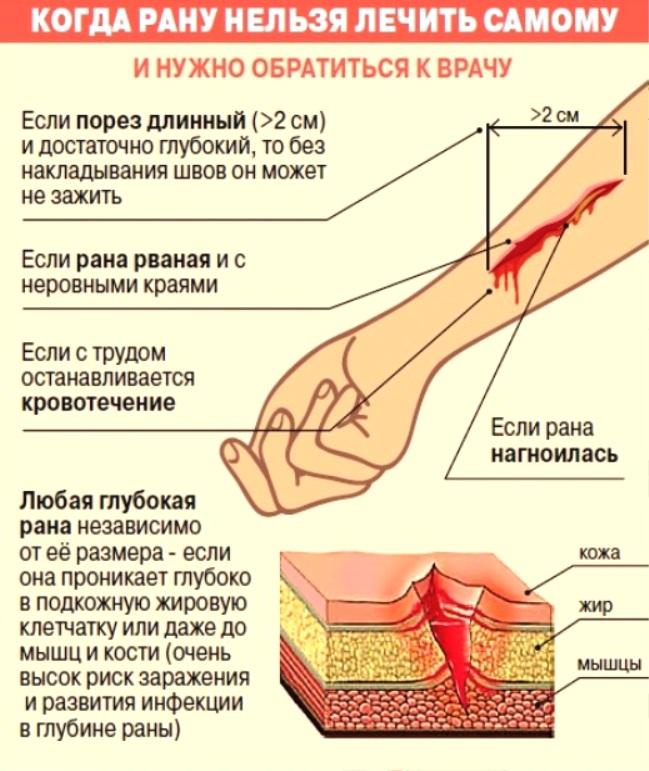 Как сделать что бы рана зажила 887