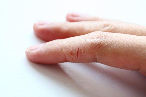 Облазиют ногти на руках что делать