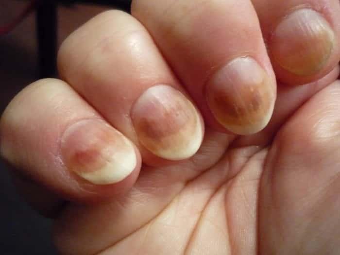 Как лечить ногтевой грибок на пальцах рук