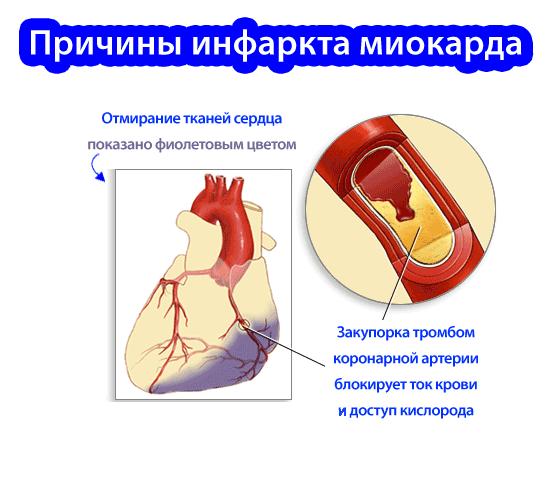 seks-lechit-ot-infarktov