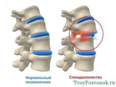 Как лечить смещение шейных позвонков у грудничков