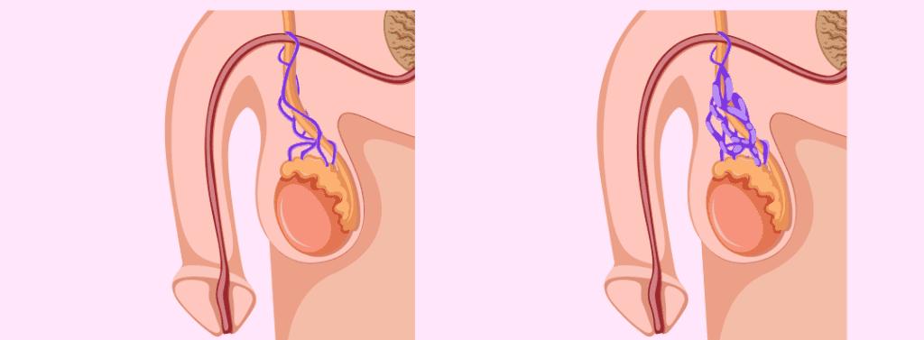 uvelichenie-spermatozoidov-u-muzhchin