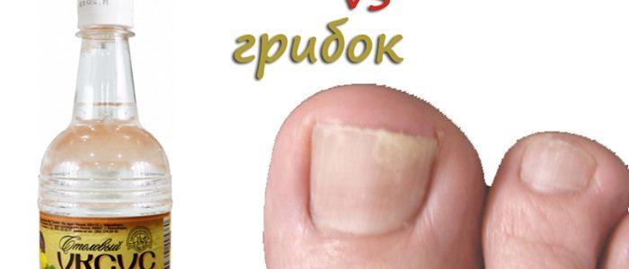 Грибок ногтей на ногах сода уксус в домашних условиях