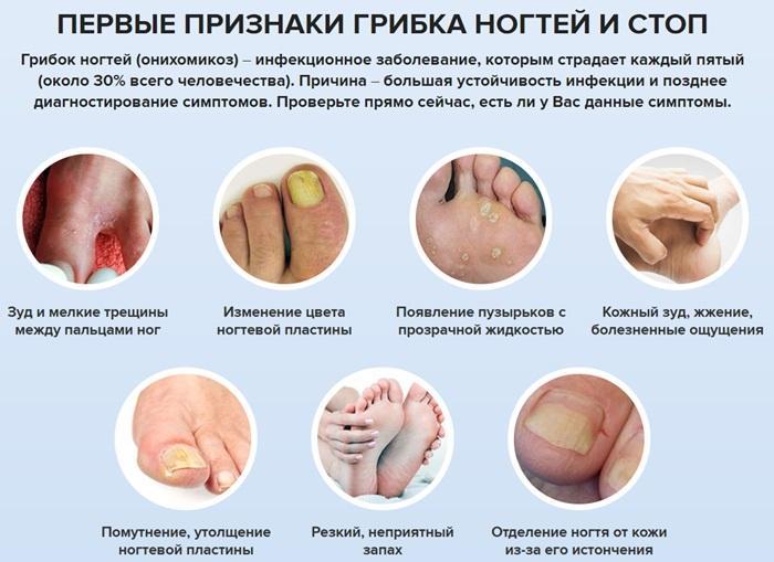 Виды и лечение грибка ногтей рук