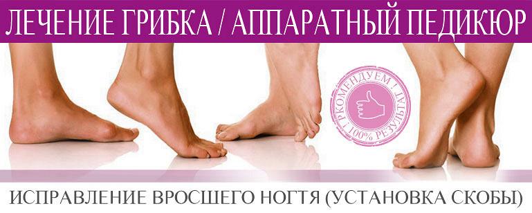 Грибок на ногах у беременной как лечить
