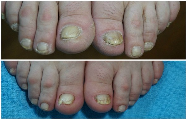 Березовый деготь лечение грибка на ногах