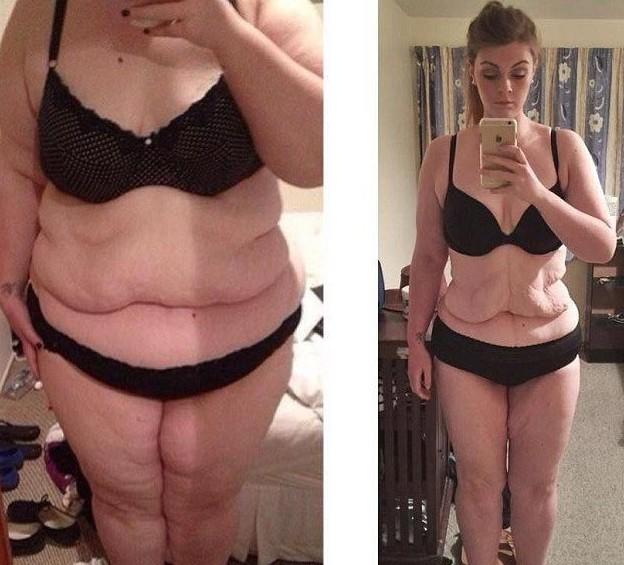 Фото до и после похудения для стимула :), будет ли