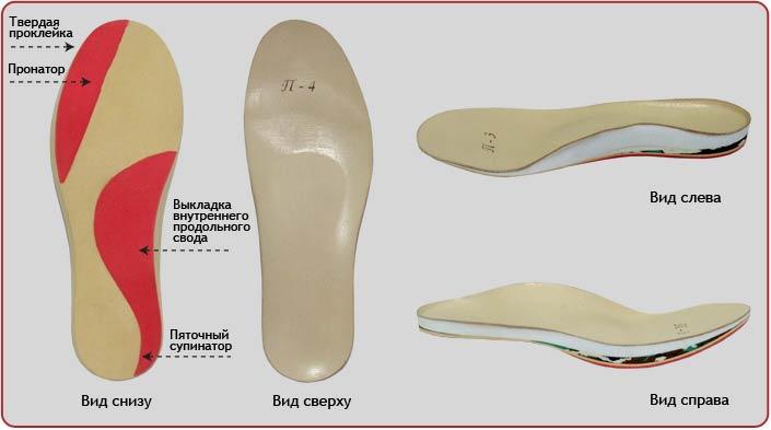 Стельки от артроза стопы