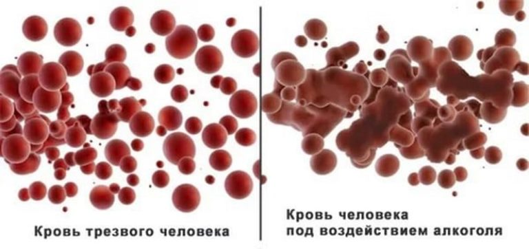 Как избавится от алкоголизма в крови