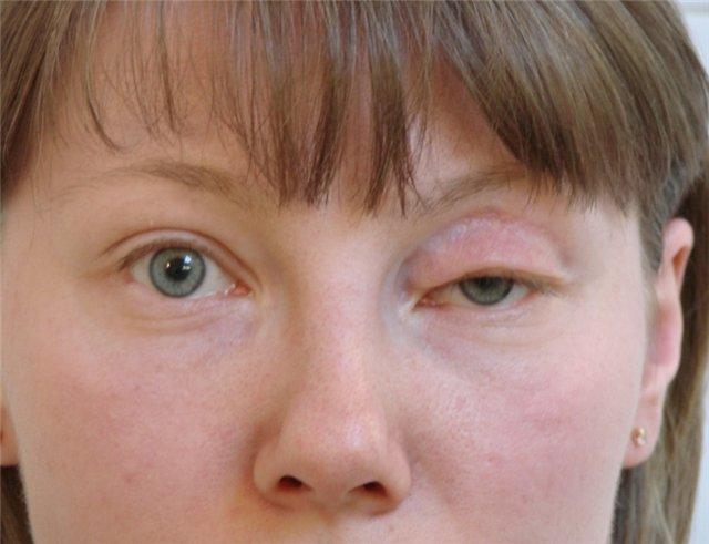Как снять отеки на лице после запоя