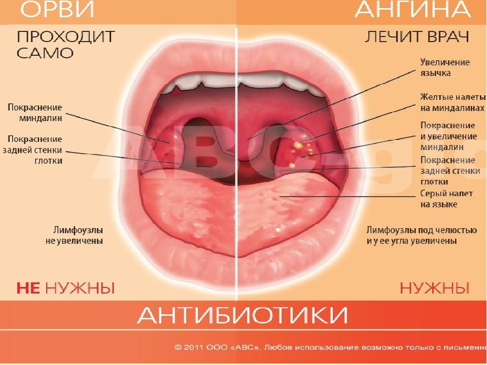 У ребенка болит горло: чем лечить - Parentsru