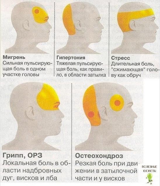 боли в лобной части головы - Что делать, если болит