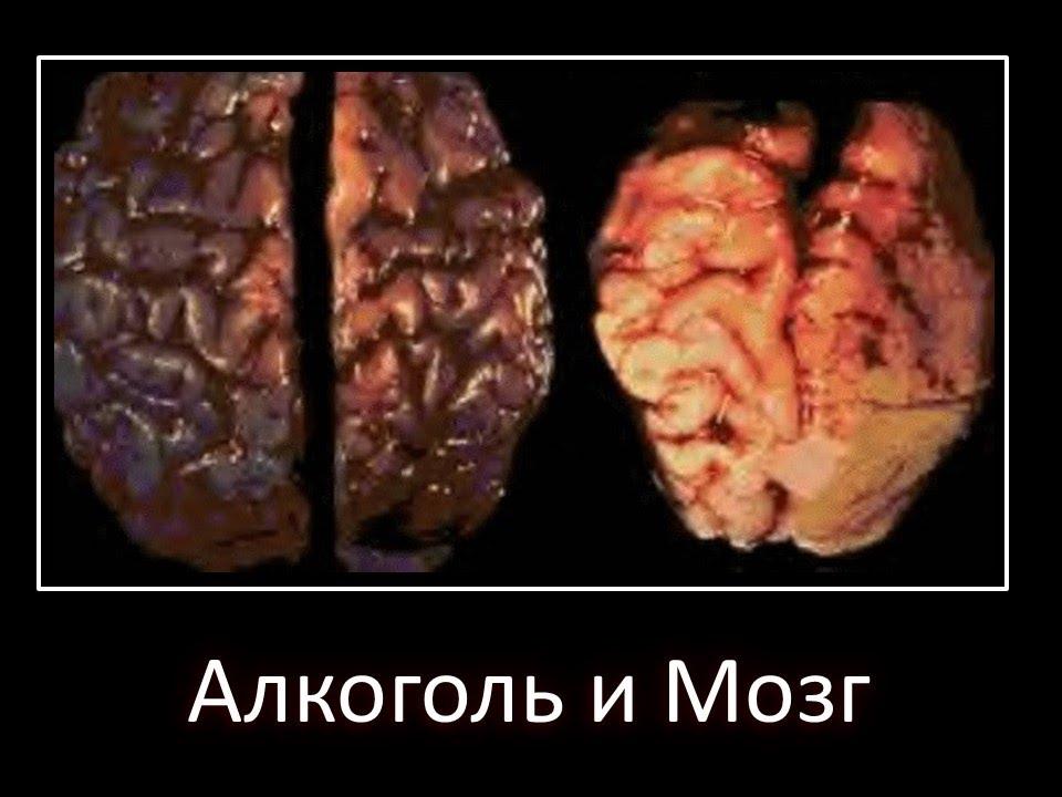 Как помочь мозгу после запоя