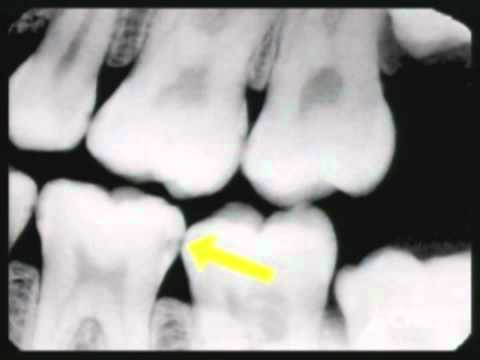 Why switch to digital radiography? - The Journal of the