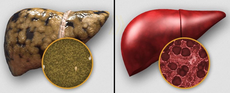 Гепатит с от алкоголизма может быть